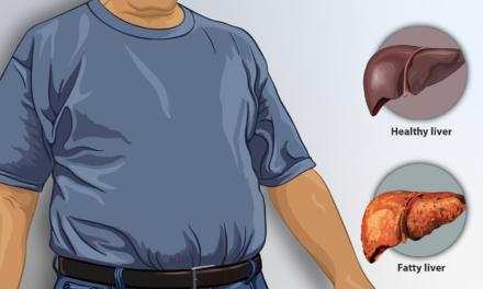 Diagnosticul imagistic în ficatul gras non-alcoolic