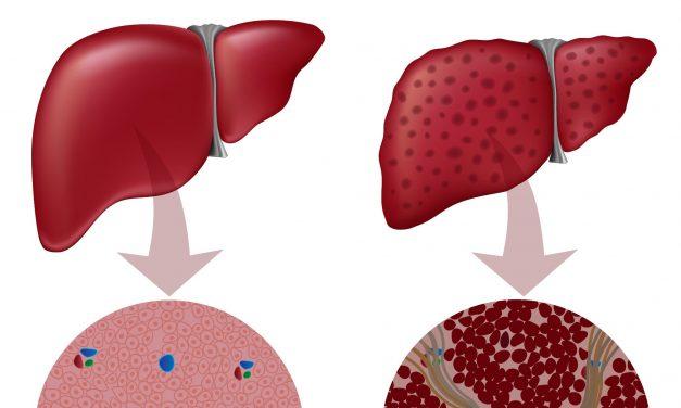 Investigații ale fibrozei hepatice declanșată în urma procedurii Fontan