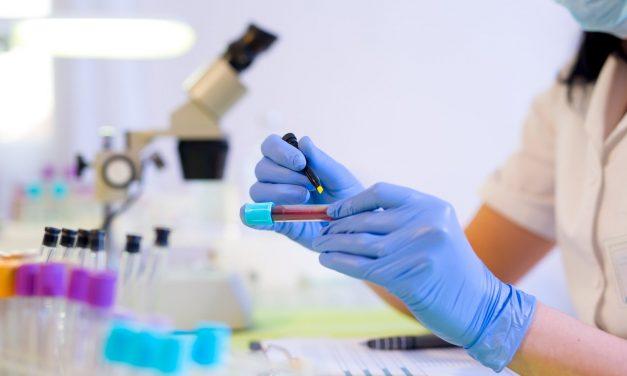 Sibiu, județul cu cei mai mulți pacienți identificați cu hepatită A în 2020