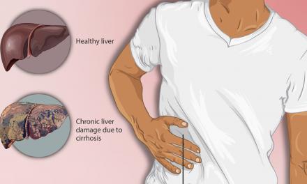 Dieta în ciroza hepatică