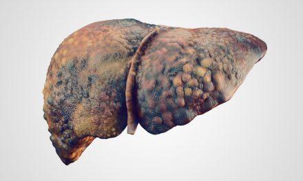 Tehnologie promițătoare pentru ablația prin radiofrecvență la pacienții cu cancer de ficat