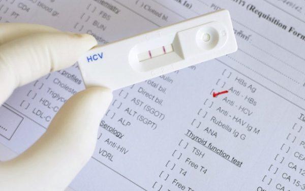 Importanța testării viremiei în infecția cu Hepatita C