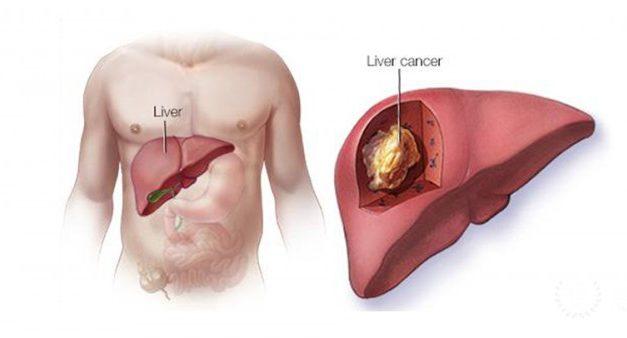 Prognosticul în carcinomul hepatocelular depinde de dimensiunea tumorii